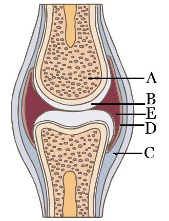 Arthritis psoriatica DIP ízületi arthritis-szel